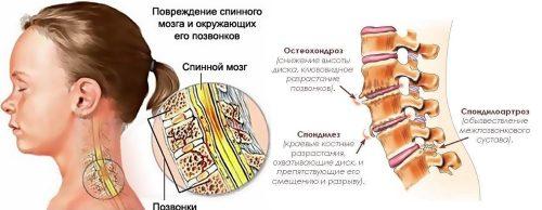 Спондилез шейного отдела позвоночника