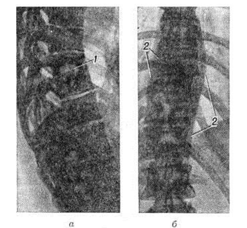 Спондилит на рентген снимке