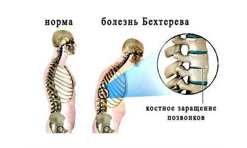 Спондилоартрит — болезнь Бехтерева
