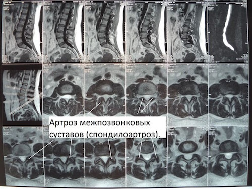 Спондилоартроз на МРТ