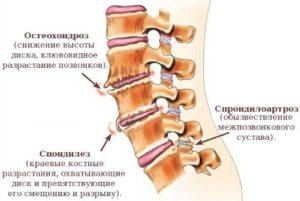 Отличия спондилоартроза от других заболеваний спины