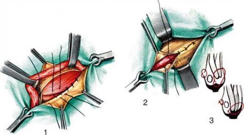 Оперативное сшивание мышц