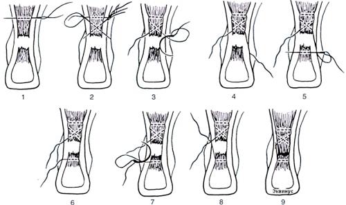 Сшивание разрыва ахиллова сухожилия