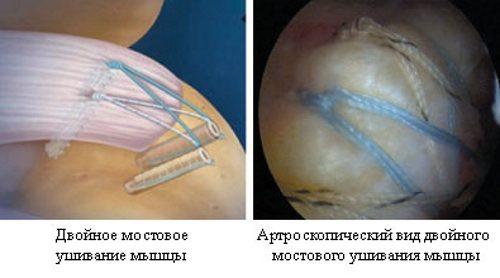 Сшивание связок плеча