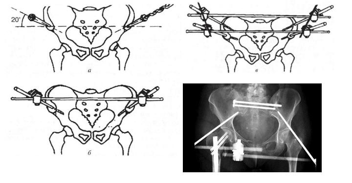 Стабилизация костей таза штифтами и спицами