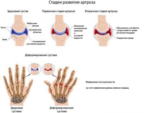 Стадии артроза пальцев рук