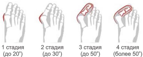 Стадии деформации большого пальца стопы