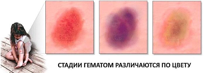 Стадии гематомы