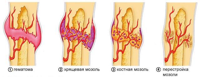 Стадии сращивания кости
