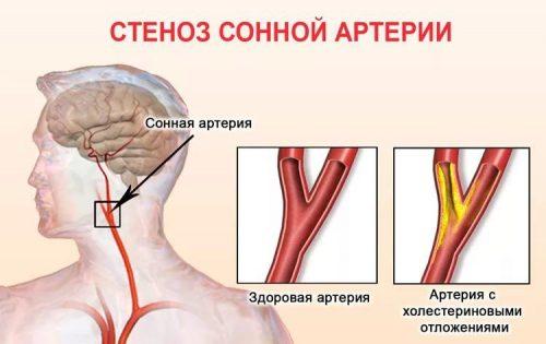 Стеноз или сужение артерии шейного отдела