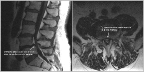 Стеноз позвоночного канала на МРТ снимке