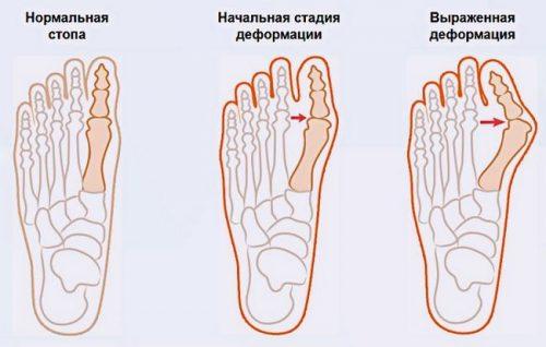 Степени вальгусной деформации стопы