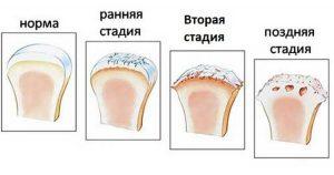 Степени разрушения при артрозе шеи