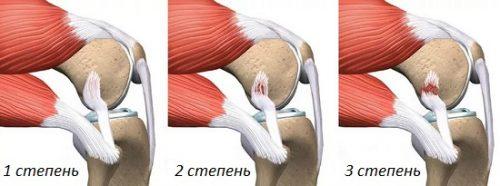 Степени дисторсии связки колена