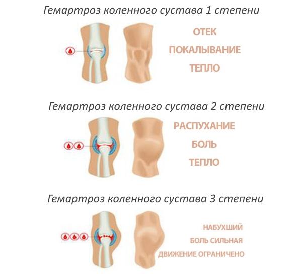 Степени гемартроза коленного сустава