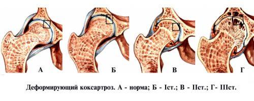 Степени коксартроза