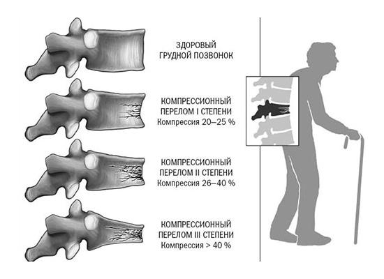 Степени компрессионного перелома