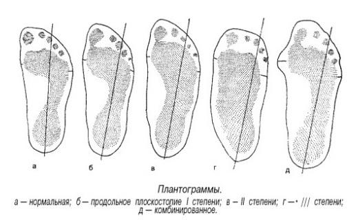 Определение степени плоскостопия