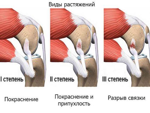Степени растяжения плечевого сустава