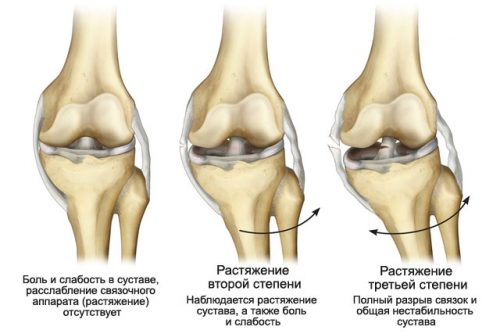 Степени растяжения связки колена