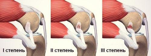 Степени разрыва связок плеча