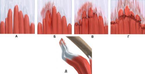 Степени разрыва мышц