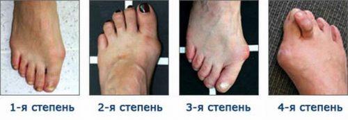 Степени вальгусной деформации большого пальца стопы