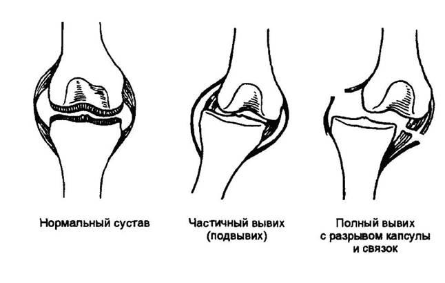 Степени вывиха колена до разрыва