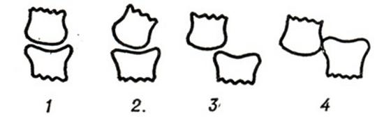 Степени вывиха сустава пальца