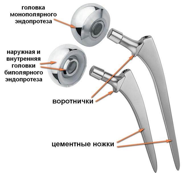 Строение эндопротеза тазобедренного сустава