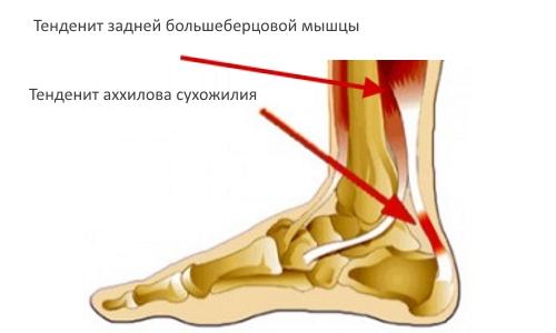 Тендениты задней большеберцовой мышцы и ахиллова сухожилия