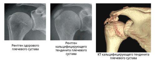 Тендинит на рентген снимке