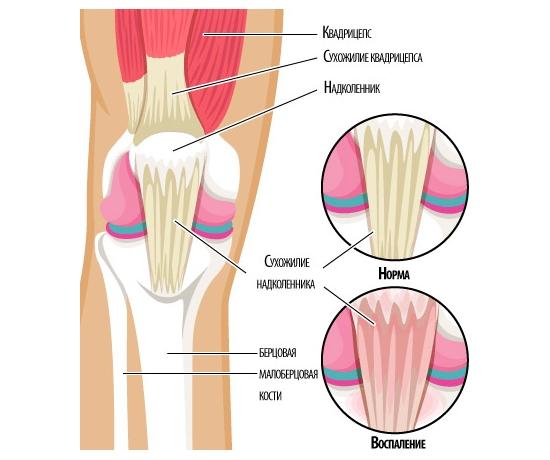 Тендинит сухожилия коленного сустава