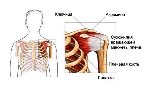 Тендиноз плечевого сустава