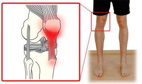 Тендиноз сухожилий колена