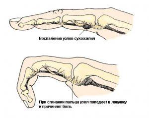 Тендосиновит