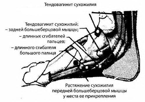 Тендовагинит сухожилия голеностопного сустава