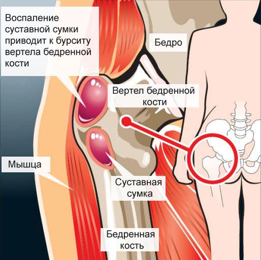 Тендовагинит тазобедренного сустава