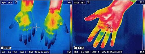 Тепловизорное обследование