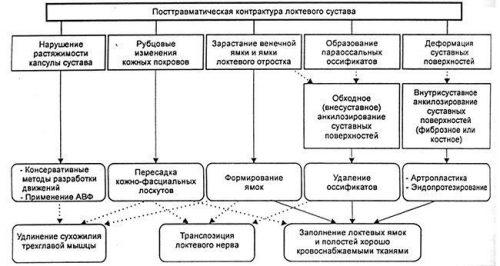 Причины и терапия посттравматической контрактуры