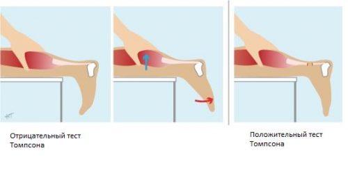 Тест Томпсона разрыва ахиллова сухожилия