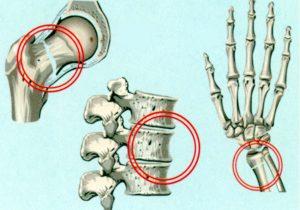 Типичные места распространения остеопороза