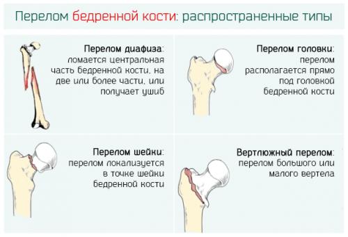Общие типы переломов кости бедра