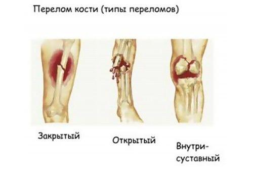 Типы переломов бедра по степени смещения
