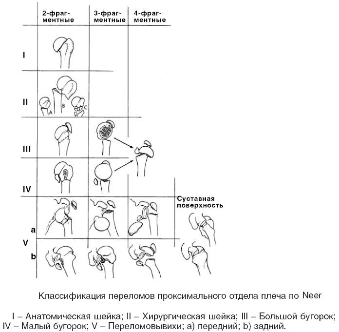 Типы переломов проксимального отдела плеча