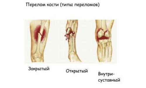 Типы переломов