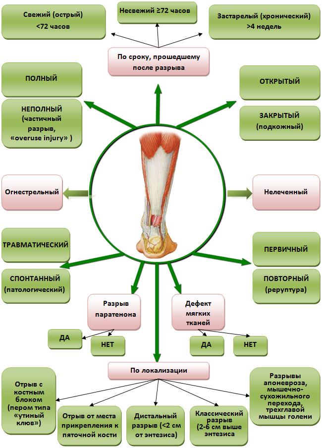 Типы разрыва ахиллова сухожилия