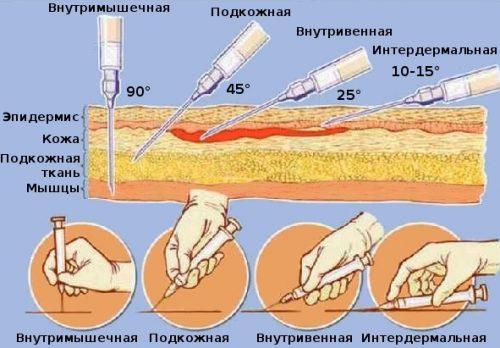 Типы введения инъекций