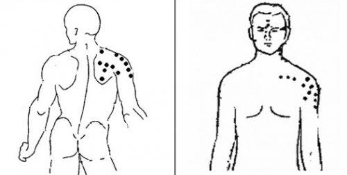 Точки для акупунктуры плечевого сустава
