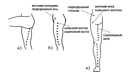 Точки для массажа ноги при неврите седалищного нерва